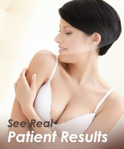 Breast Lift Tulsa OK