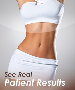 Liposuction tulsa ok