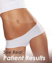 Thigh Lift Tulsa OK