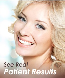 Brow Lift Tulsa OK